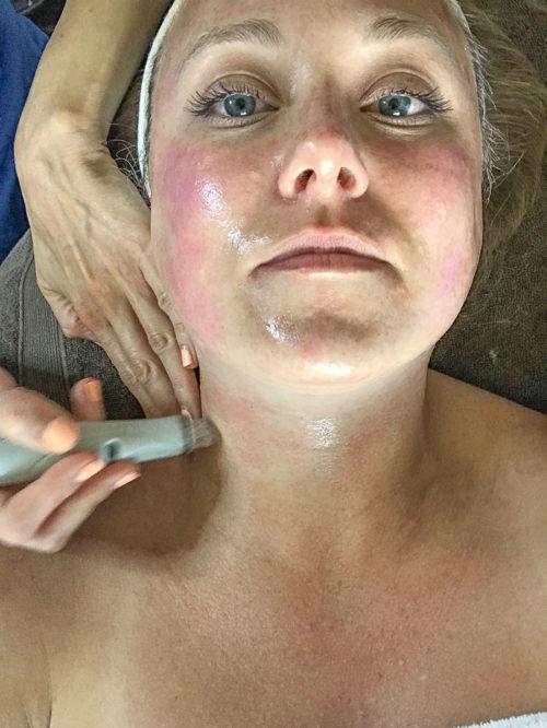 Hydrofacial at Hall Plastic Surgery and Rejuvenation Center_Natalie Paramore
